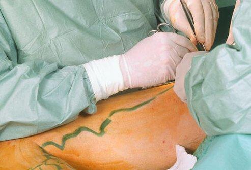 tratamiento quirurgico extirpación de venas varicosas